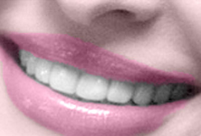 los dientes no son de color blanco